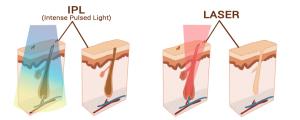 Epilare-laser-vs-epilare-ipl-dermesteticaepilare-laser-vs-epilare-ipl-dermestetica