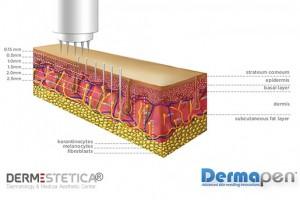 dermapen-microneedling